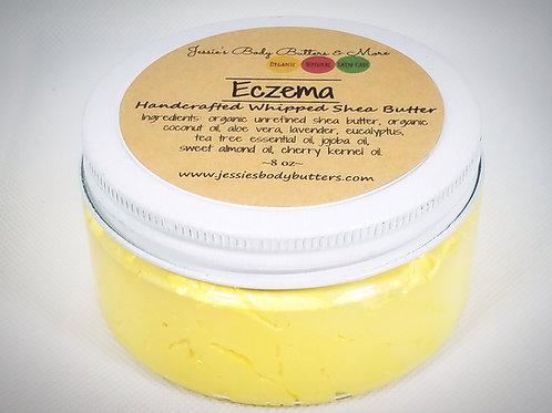 Whipped Shea Butter-Eczema