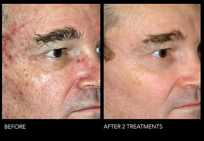 Microlaser 2Treatments.jpg