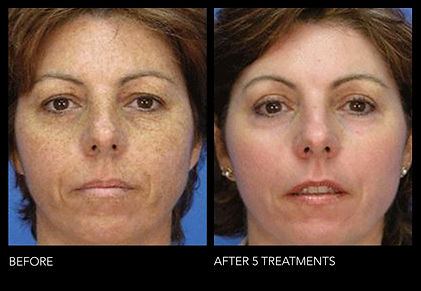 MicrolaserPeel5Treatments.jpg
