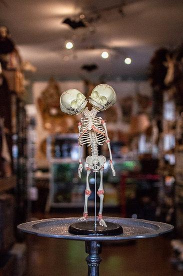 Two-Headed Fetal Skeleton Replica