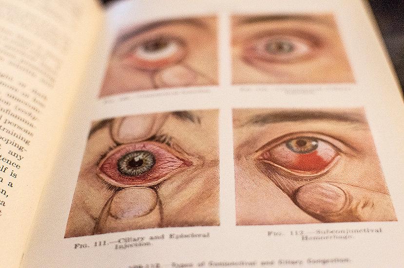 1924 - Diseases of the Eye