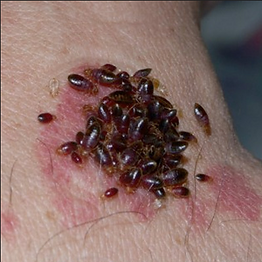 bed bugs feeding.png