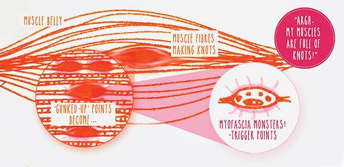 Trigger-points.jpg