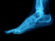 Foot 2.png