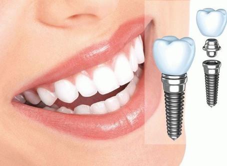 Implanttipäivät Onnellisessa hymyssä!