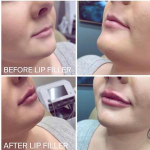 Before & after Lip Filler