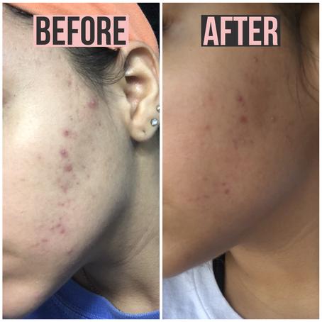 How I Cleared My Skin In a Week!