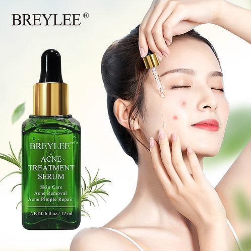 Anti Acne Pimple Skar Remover Face Serum