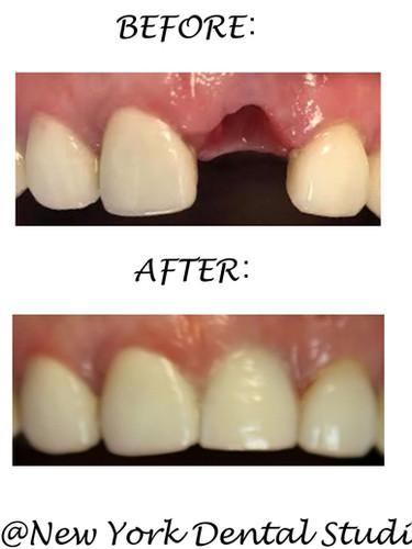 Ruan Jiamin Implant.jpg