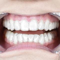 Aligner Image in mouth.jpg