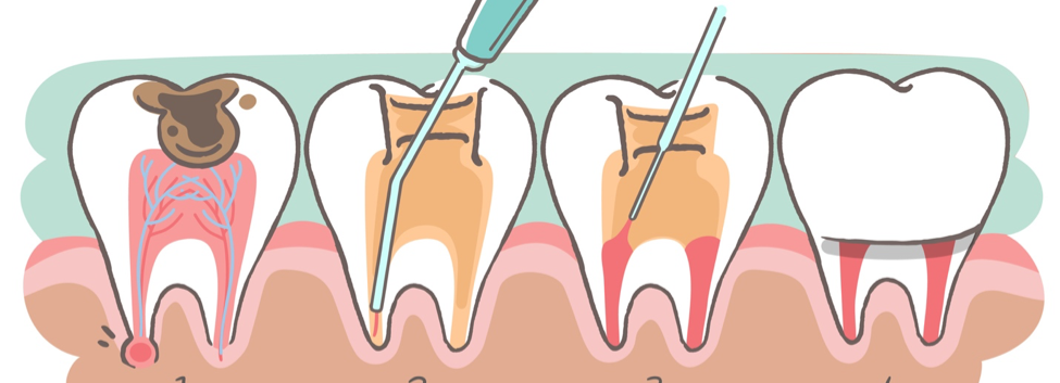 rootcanal.png