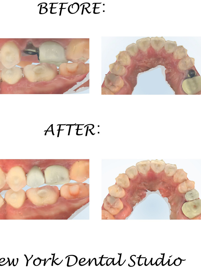 Implant Posterior