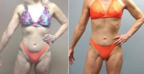 beforeafter_female.png