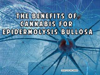 Top 5 benefits of cannabis for epidermolysis bullosa