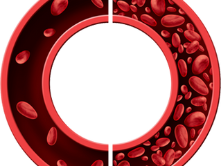 Sickle Cell Anemia Overview