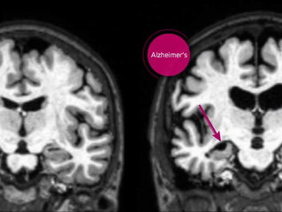 CBD Oil for Alzheimer's – Get Your Facts Straight