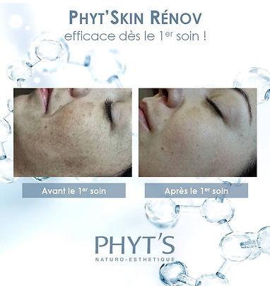 Peeling chimique naturel Phyt'Skin Renov