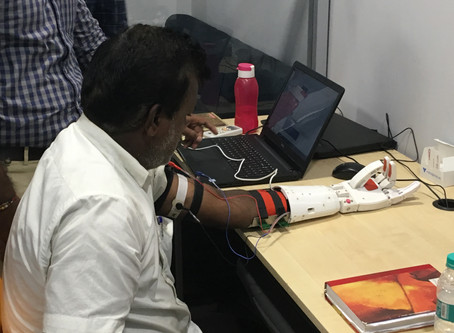 The A.I Myoelectric Prosthesis.