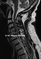 Degenerative cervical spondylosis with Myelopathy best spine treatment in Pune