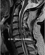 Cervical canal stenosis due to disc herniation causing arm pain and radiculopathy