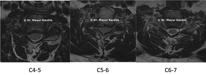 Axial MRI showing cervical foraminal stenosis due to disc herniation leadin to arm pain and radiculopathy