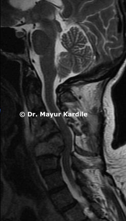 Cervical spine infection with kyphosis deformity