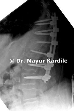 Spine reconstruction and fusion surgery for pyogenic infection