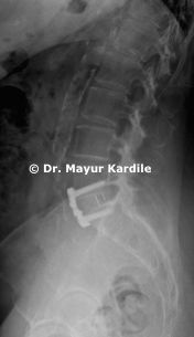 Anterior lumbar interbody fusion. the most minimally invasive technique of lumbar fusion. Dr Mayur kardile is the best spine surgeon to do this operation
