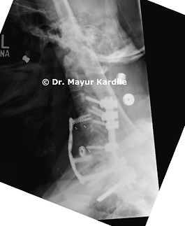 Cervical Spine reconstruction surgery in patient with Spine infection