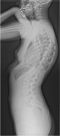 Adolescent idiopathic scoliosis lateral x ray