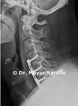ACDF anterior cervical discectomy and fusion. patients can get quick relief from neck and arm pain with this surgery