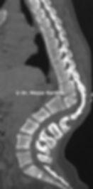 Congenital Thoracolumbar spine kyphosis deformity due to hemivertebra