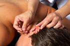 Auricular acupuncture, ear acupuncture, Oriental Medicine, Chinese Herbs