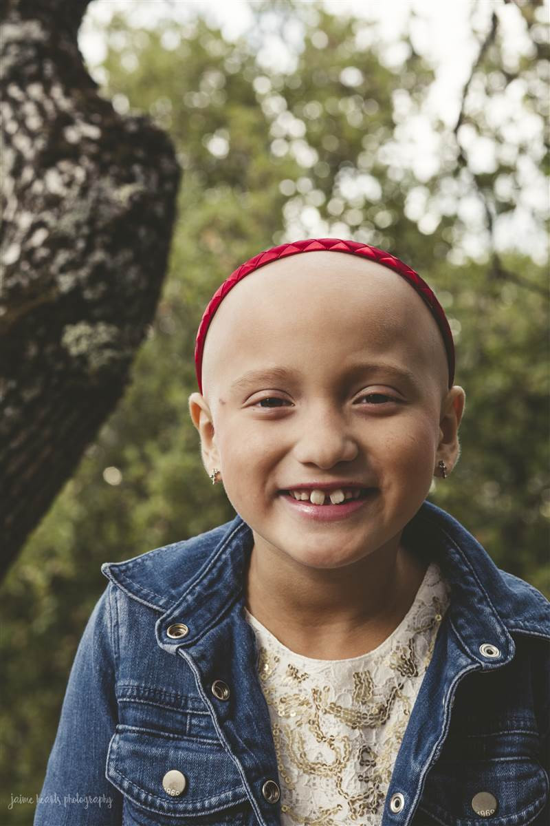 Ellie Regal lost all of her hair to alopecia totalis that would eventually develop to alopecia universalis.