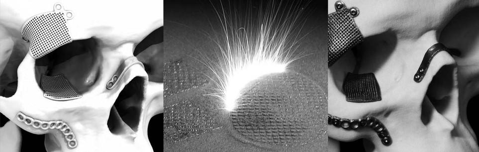 Metall Implantate