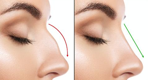 favpng_nose-rhinoplasty-plastic-surgery-