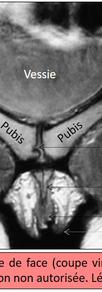 IRM 2D - Vue de face