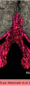IRM 3D