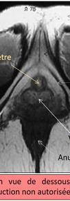 IRM 2D - Vue de dessous