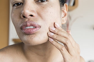 dry-skin-around-the-mouth.jpg