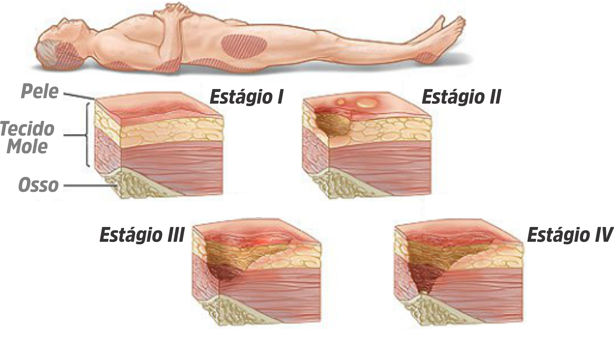 Lesão por pressão (escaras)
