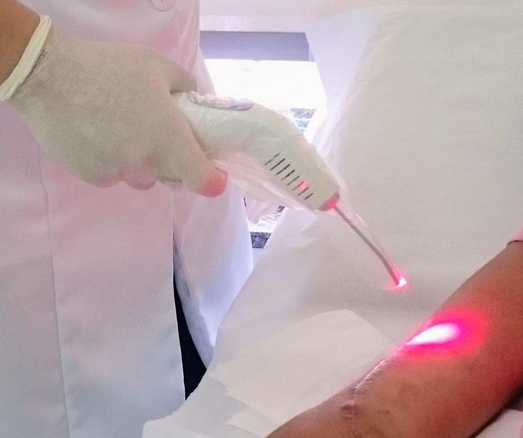 Curativo a laser (laserterapia)