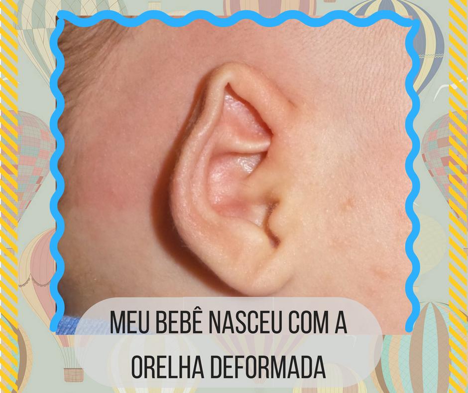 orelha de abano; orelha deformada
