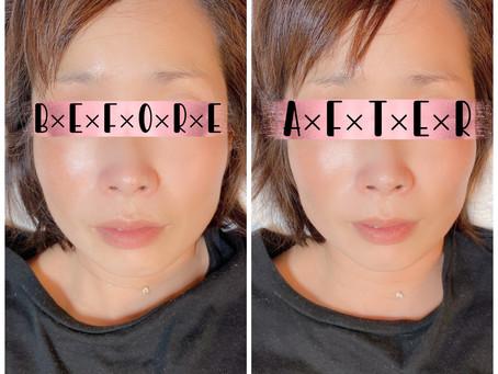 【小顔調整】40代女性 専業主婦