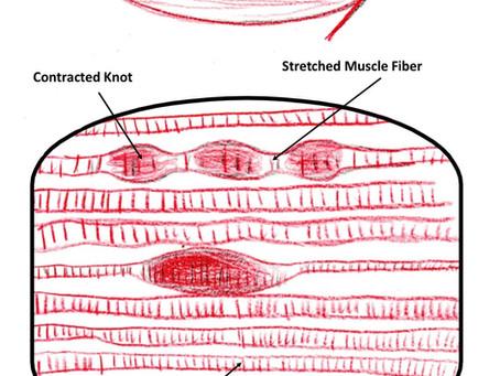 Knots, Knotty Muscle Knots