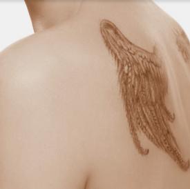 Tattoo verwijdering