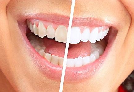 how-to-get-white-teeth.jpg