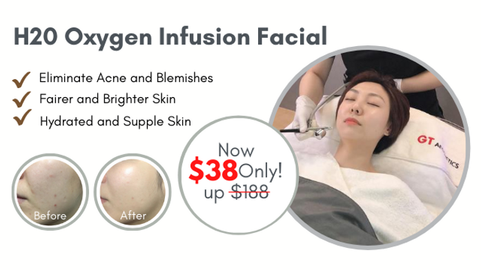 Oxygen Facial Web Banner.png