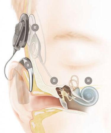 implante-e1422484139788.jpg