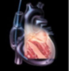 Transesophageal-Echocardiography.jpg